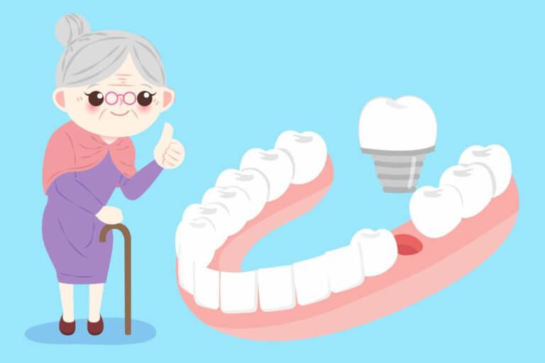 人工植牙與裝假牙哪個好?
