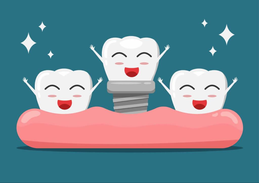 人工植牙:幫假牙打上地基