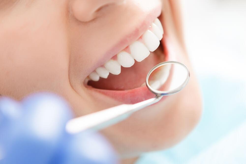 齒雕缺點ptt分享:要仔細維持口腔清潔