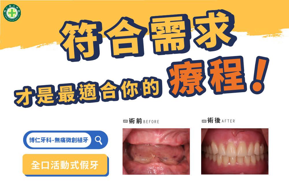 許子駿活動假牙案例